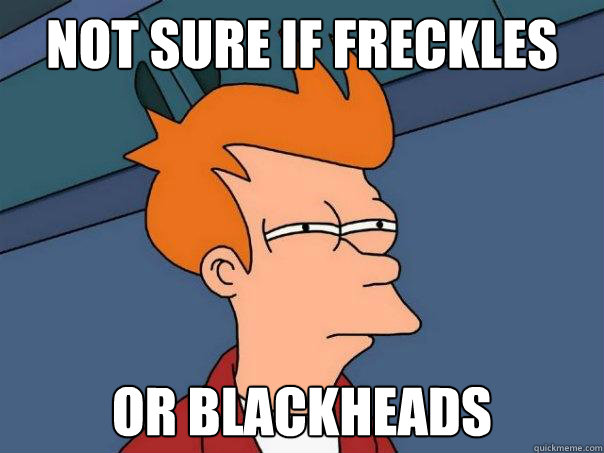 not sure if freckles or blackheads - Futurama Fry