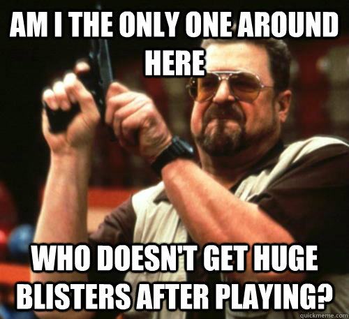am i the only one around here who doesnt get huge blisters  - Am I The Only One Around Here