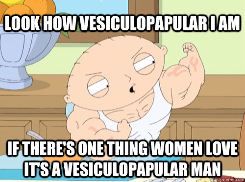 look how vesiculopapular i am if theres one thing women lov - stewie vascular