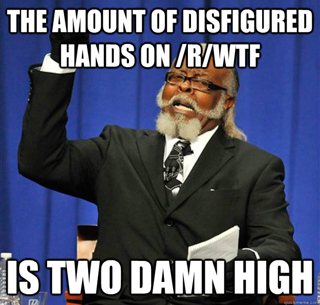 the amount of disfigured hands on rwtf is two damn high - Jimmy McMillan
