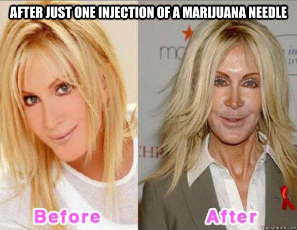 weedaddict after just one injection of a marijuana needle Never Go Full Retard