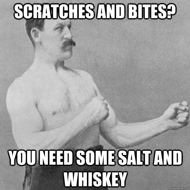 scratches and bites you need some salt and whiskey - overly manly man
