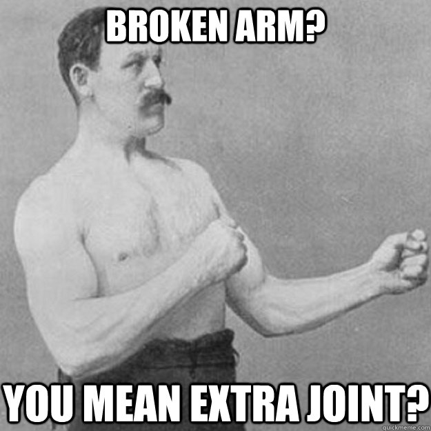 broken arm you mean extra joint - overly manly man